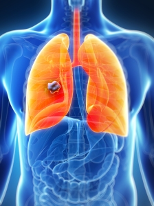 Lung cancer in a male adult