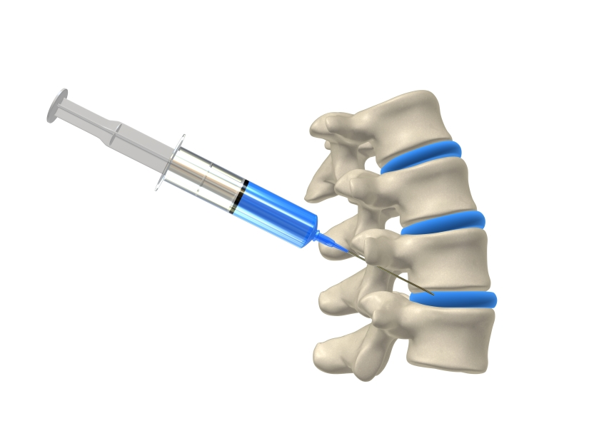 Spinal injection