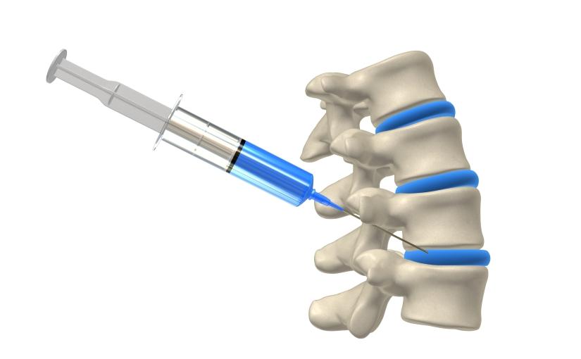 脊柱损伤的愈合帮助(第122天)
